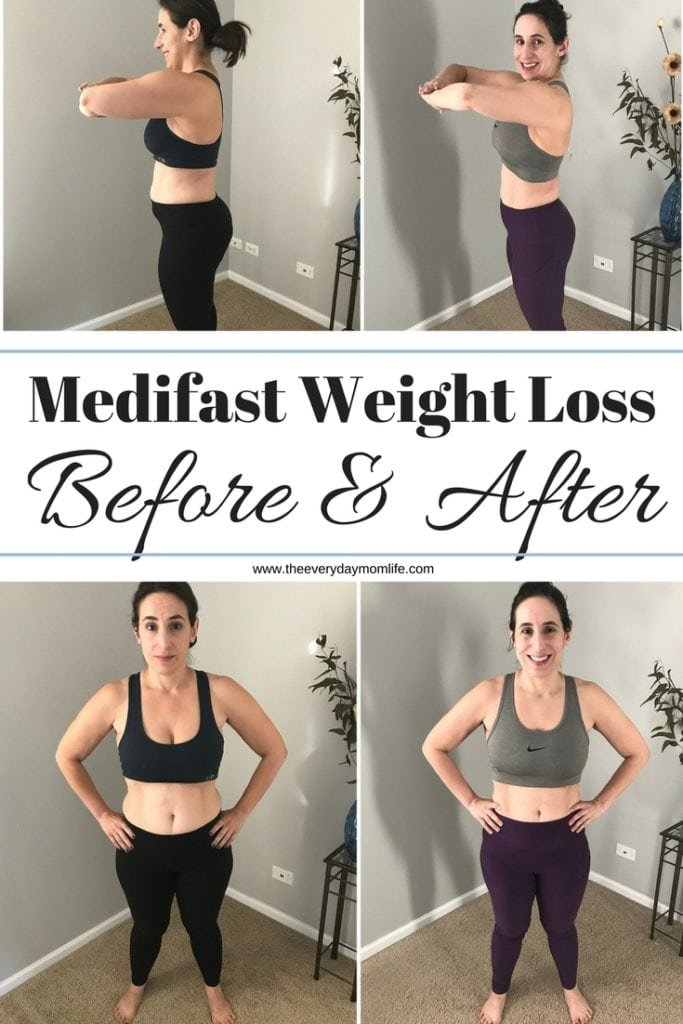 Medifast Flex: The Plan, The Pros & Cons